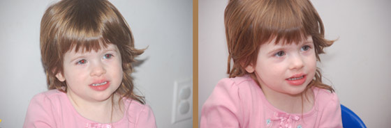 Young girl comparing with and withouth Flip-it! 400